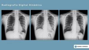 Radiografia Digital Dinâmica
