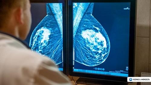 Mamografia Pandemia